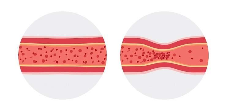 Ravestin L-lisina rafforza le pareti delle arterie, ed è anche un precursore della carnitina, che è coinvolto nel trasporto di grassi e supporta il sistema cardiovascolare.