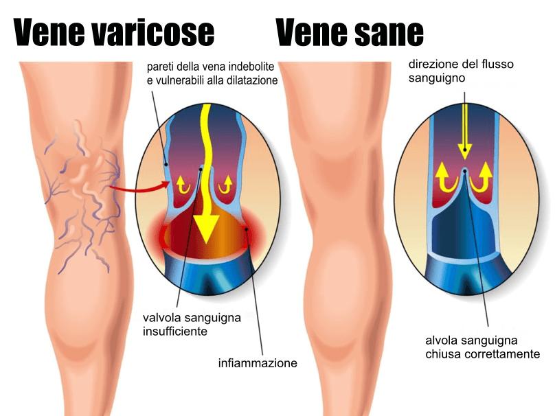 Come funziona Varicolen contro i problemi venosi?